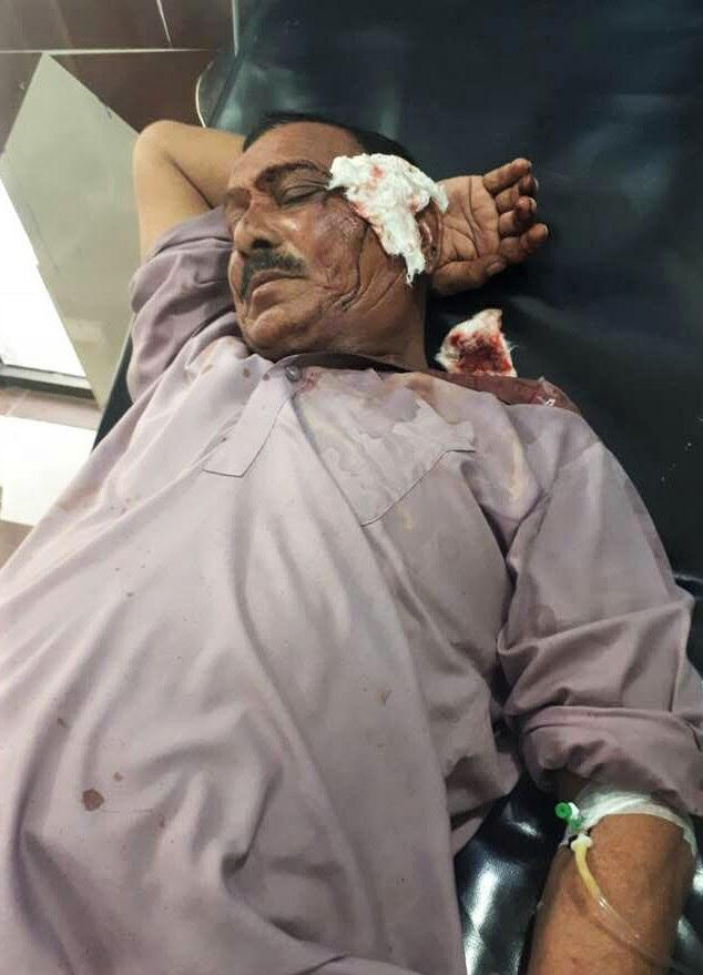 Injured member of King Jesus Church in Burewala, Punjab Province, Pakistan. (Morning Star News)