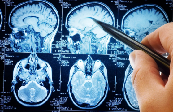Autistic, Alzheimer's & Multiple Sclerosis Brain Tissues Have Significant Amounts of Aluminum In Them Image-521
