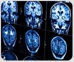 NIH releases unparalleled dataset from Adolescent Brain Cognitive Development study