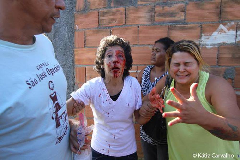Moradora foi agredida por policiais. Foto: Katia Carvalho