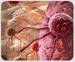 New gel offers protection for organs at risk during prostate cancer treatment