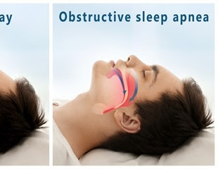 Hypoglossal Nerve Stimulation (HGNS) for Sleep Apnea