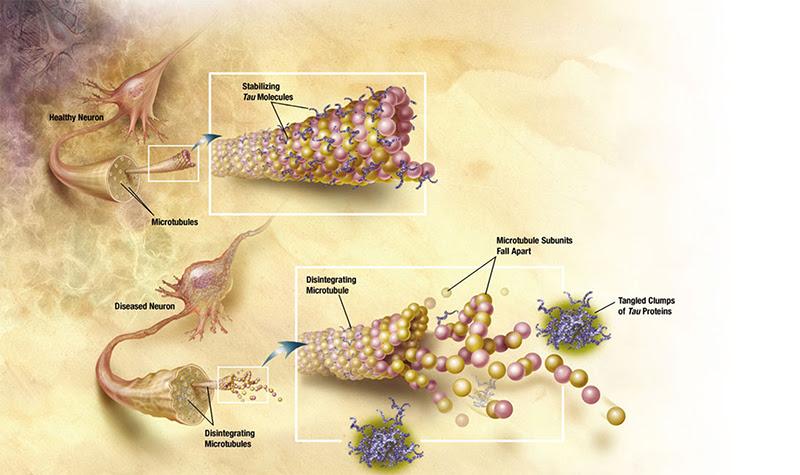 Microtubules
