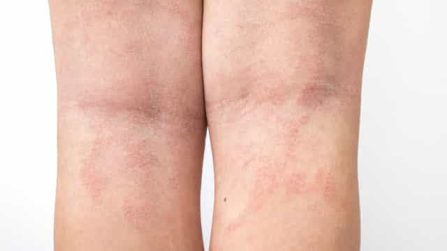Manifestações de pele podem ser indicativo de covid-19