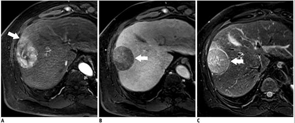 Imágenes de IRM de un tumor primario en el hígado.