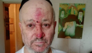 EXCLUSIVE Interview with Jewish Couple in Paris Beaten by Muslim Home invaders