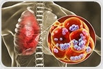 New target for pneumonia seems to restore tight barriers and fluid clearance in the lungs
