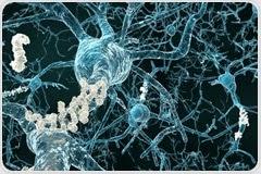 Diet and Alzheimer's Disease