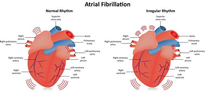심방 세동과 관련된 저탄 수화물 다이어트