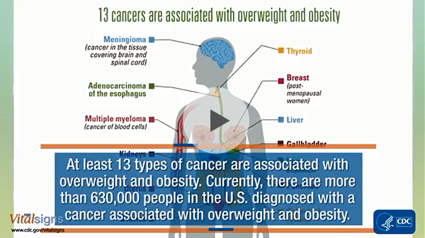 Cancer and obesity