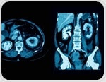 Tests for Ureteric Calculi: Radiograph, CT and Ultrasound
