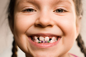 Little girl smiling with braces