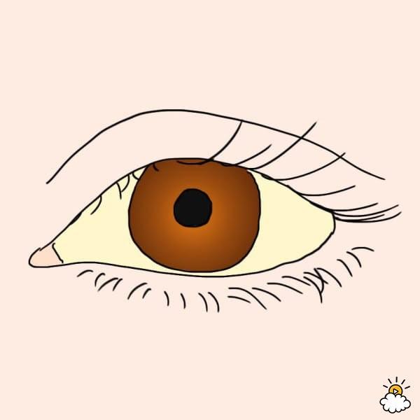 Sự thay đổi bất thường ở mắt báo hiệu bệnh nguy hiểm - Ảnh 3.