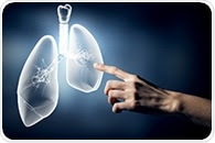 Computerized tissue-imaging may help predict early recurrence of lung cancer