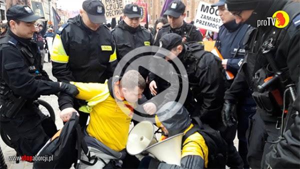 Atak policji