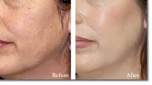 Image result for free chemical peel before and after