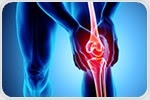 First surgery in the U.S. to implant device for knee osteoarthritis