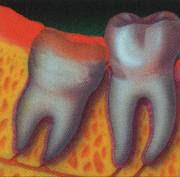 Wisdom Tooth extraction in El Paso Texas