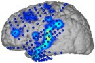 Brain activity recorded by electrocorticography electrodes (blue circles). spoken words are then decoded from neural activity patterns in the blue/yellow areas. (credit: CSL/KIT)