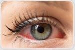 Types of Eye Allergy