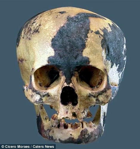 Los hallazgos arqueológicos sugieren que varias antiguas sociedades andinas distorsionaron intencionalmente la forma de sus cráneos, a partir del nacimiento, como parte de un ritual arcaico. La razón sigue siendo un misterio