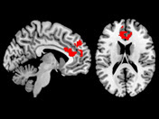 Functional connectivity within the medial prefrontal cortex was measured in the areas highlighted in red.