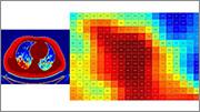 Investigación y Desarrollo en relación a la COVID-19 con MATLAB y Simulink