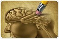 Types of Alzheimer's Disease