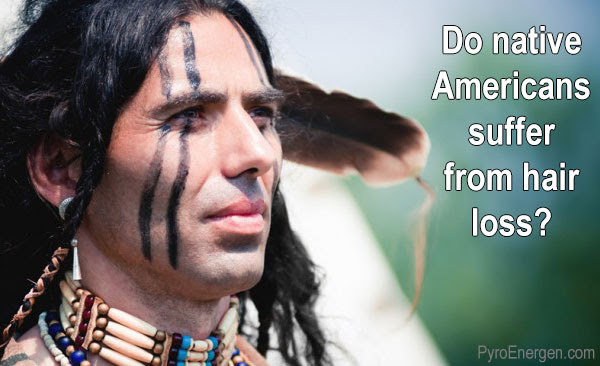Do native Americans suffer from hair loss?
