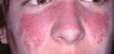 Eritema malare in pz con lupus
