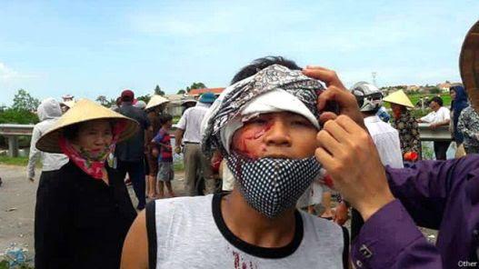Tin cho hay một cuộc biểu tình ôn hòa của người dân Việt Nam ở giáo sứ Cồn Sẻ, tỉnh Quảng Bình với khoảng 3.000 tham dự đã bị giải tán, trấn áp. Ảnh: Facebook