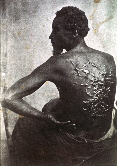 Gordon, who escaped from Louisiana slavery, 1863.  Photo: AP