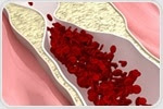 Researchers show novel relationship between gut microbiome and atherosclerosis
