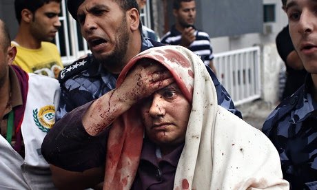 A injured Palestinian woman arrives at a
