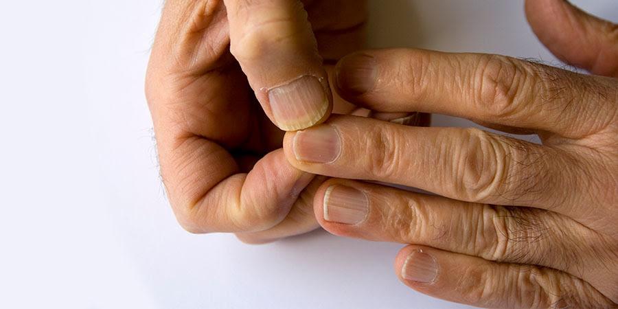 foto de de una persona mirando sus uñas