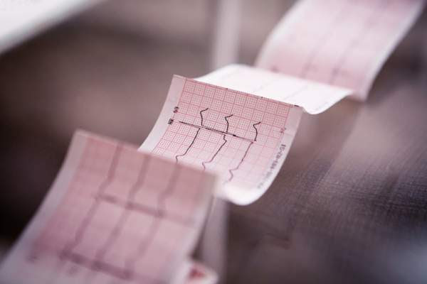 Cardiograma médico impreso en papel.