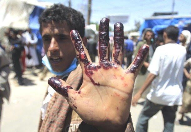 Hands off Yemen