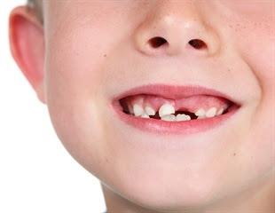 자녀의 치아를 검사하면 미래의 정신 건강 문제를 예측할 수 있습니다.