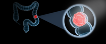Colorectal Cancer Image