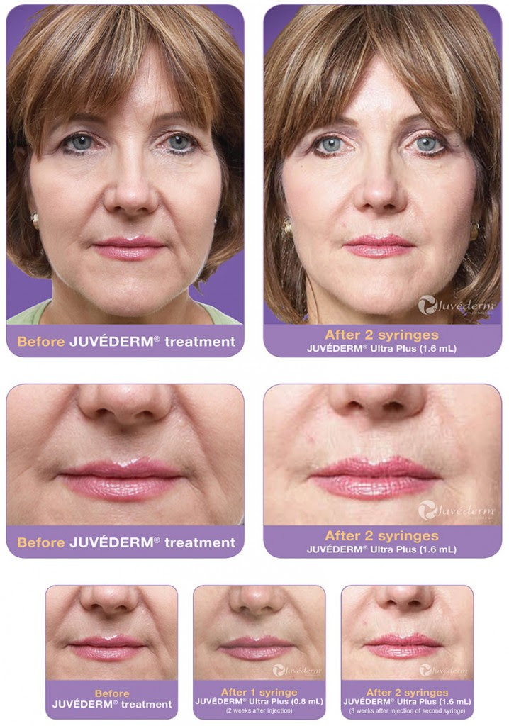 Image result for juvederm