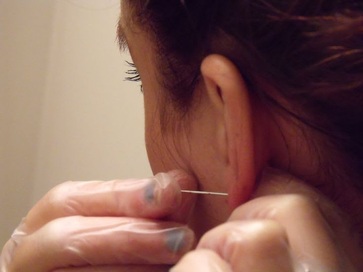 This is how ears were pierced back in the day!....with a needle after freezing your ear with ice.