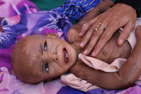 I took this photo of a starving child on a visit to a malnutrition ward in Aden, Yemen, late last year.
