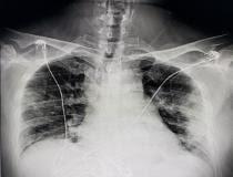 Radiografia digital (DR) Raio-X de tórax de um paciente com COVID-19 do Texas, mostrando pneumonia por COVID ao longo das laterais das paredes do tórax.  Foto do radiologista John Kim, MD