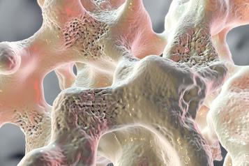 Spongy bone tissue