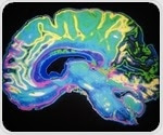 Powerful imaging technique sheds light on how the brain responds to vascular injury