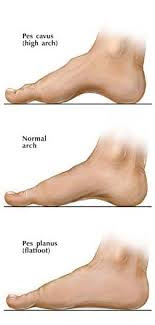 Flat Feet or High Arches - Brampton Foot Clinic