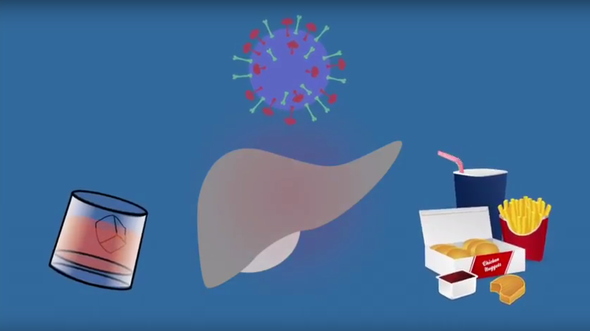 liver animation showing factors that lead to fibrosis, including hepatitis C, alcohol and fatty food