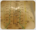 Acupuncture helps manage menopausal symptoms, review finds